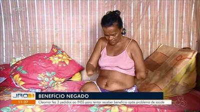 Cúmulo do absurdo: Mulher sem mãos e pernas tem pedido de benefício negado pelo INSS